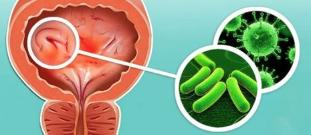 Az urethritis különbségei a prosztatitisből