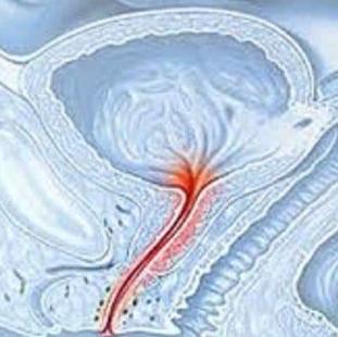 Akár urethritis elment a prosztatitishez)