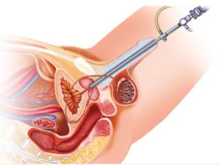 A prosztatagyulladás és az urethritis közötti különbség Prosztatagyulladás kezelése combifloxszal